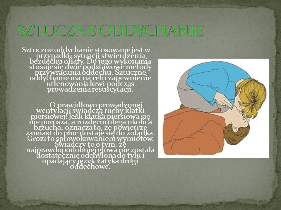 Postępowanie: Odegnij głowę poszkodowanego do tyłu jedną rękę kładąc na jego czole, a drugą złap za żuchwę.