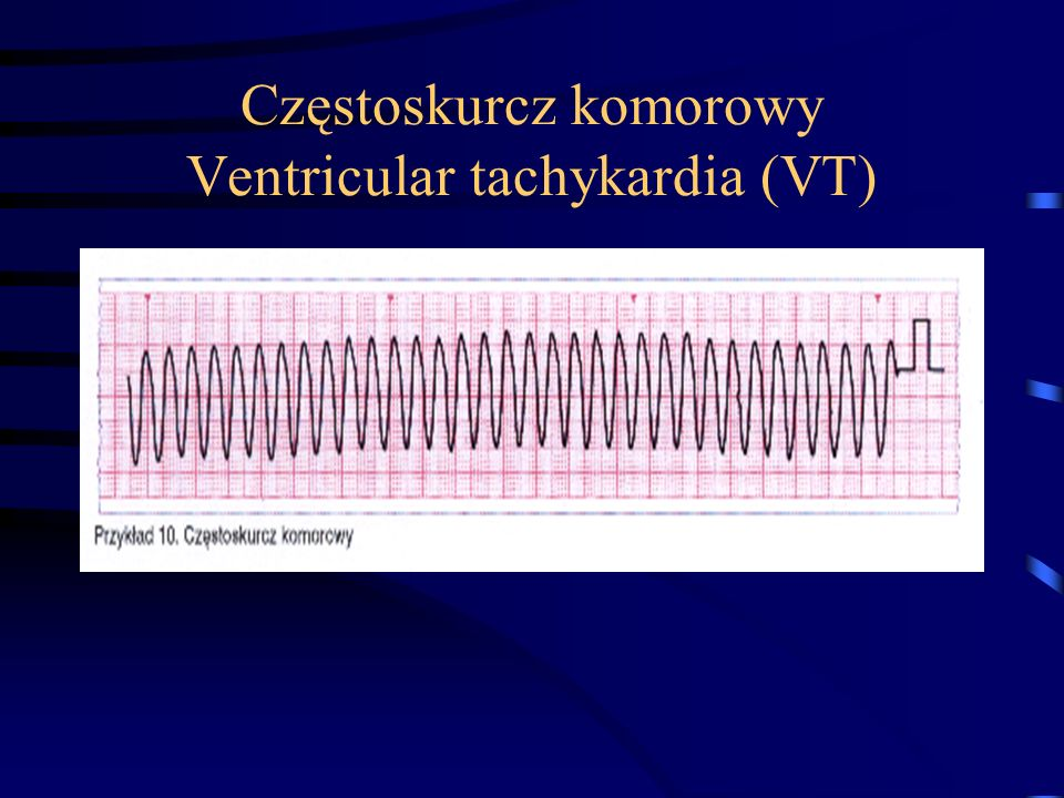 Częstoskurcz komorowy Ventricular tachykardia (VT)