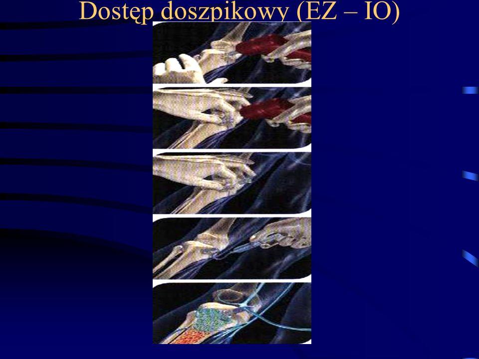 Dostęp doszpikowy (EZ – IO)