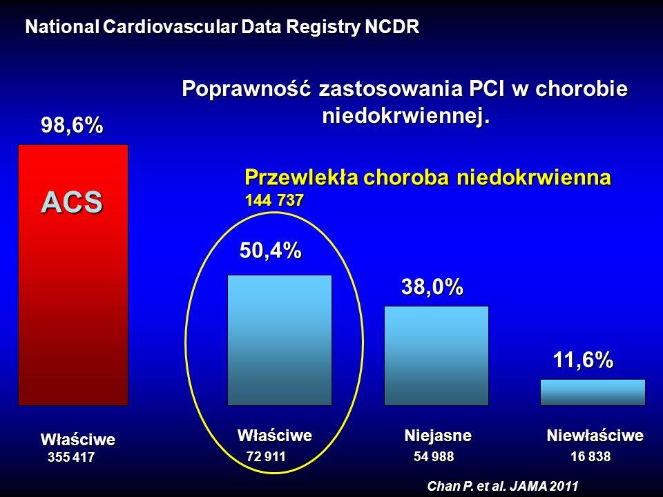 98,6% 50,4% 38,0% 11,6% ACS Poprawność zastosowania PCI w chorobie niedokrwiennej. niedokrwiennej. Właściwe Niejasne Niewłaściwe 72 911 54 988 16 838