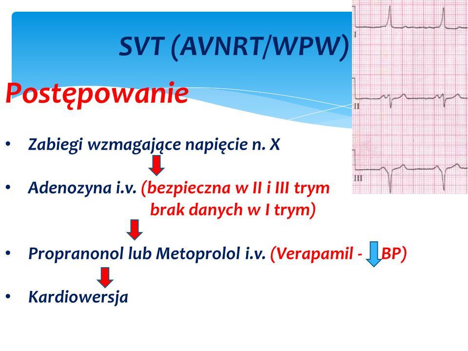 SVT (AVNRT/WPW) Postępowanie Zabiegi wzmagające napięcie n.