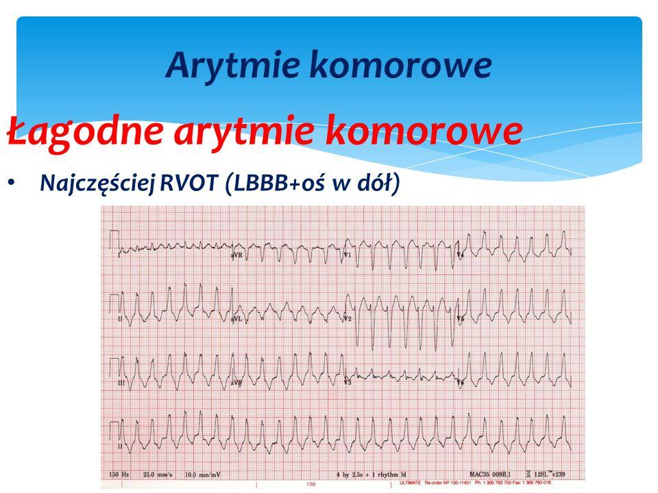 Arytmie komorowe Łagodne arytmie komorowe Najczęściej RVOT (LBBB+oś w dół)