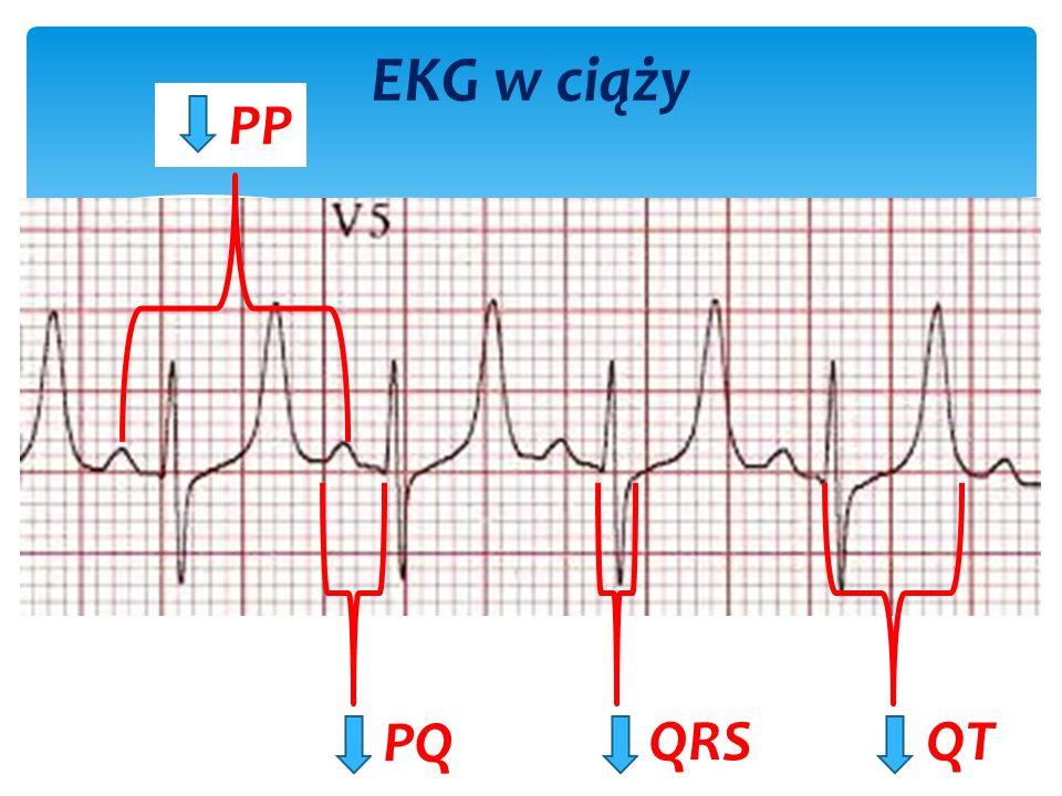 EKG w ciąży PP PQ QRSQT