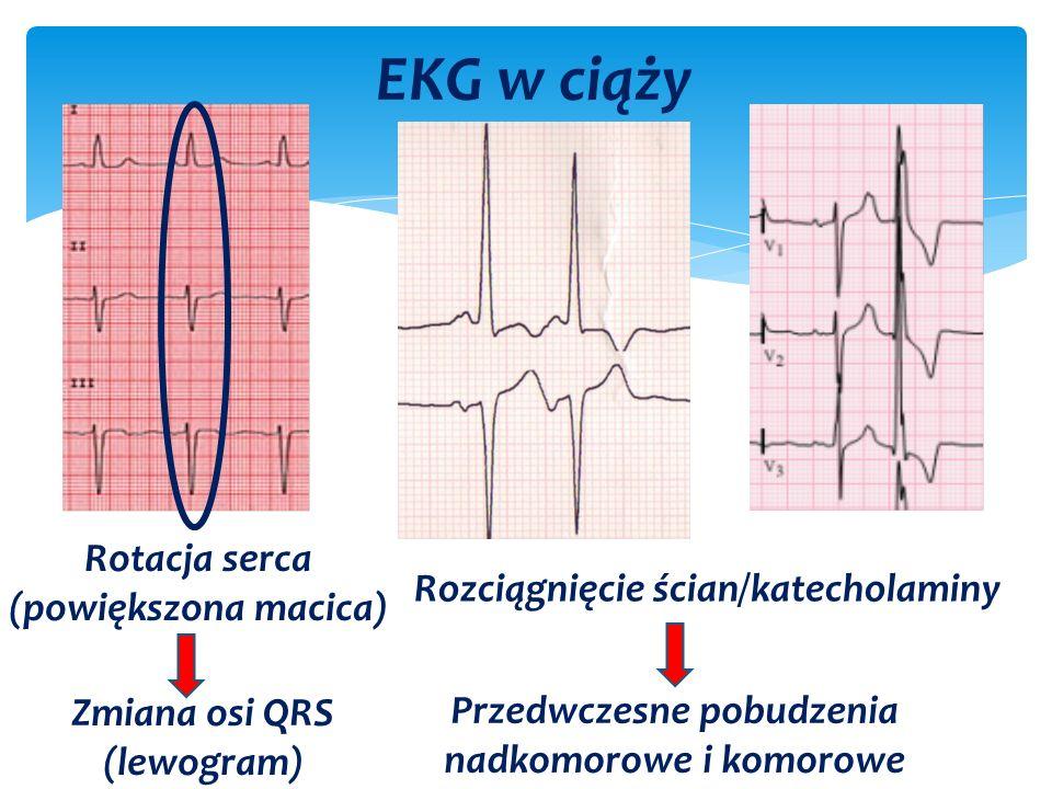 EKG w ciąży Rotacja serca (powiększona macica) Zmiana osi QRS (lewogram) Rozciągnięcie ścian/katecholaminy Przedwczesne pobudzenia nadkomorowe i komorowe