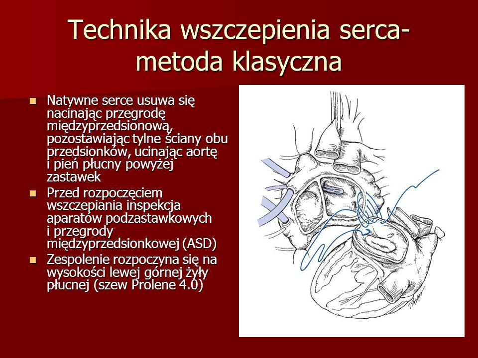 Technika wszczepienia serca- metoda klasyczna Natywne serce usuwa się nacinając przegrodę międzyprzedsionową, pozostawiając tylne ściany obu przedsion