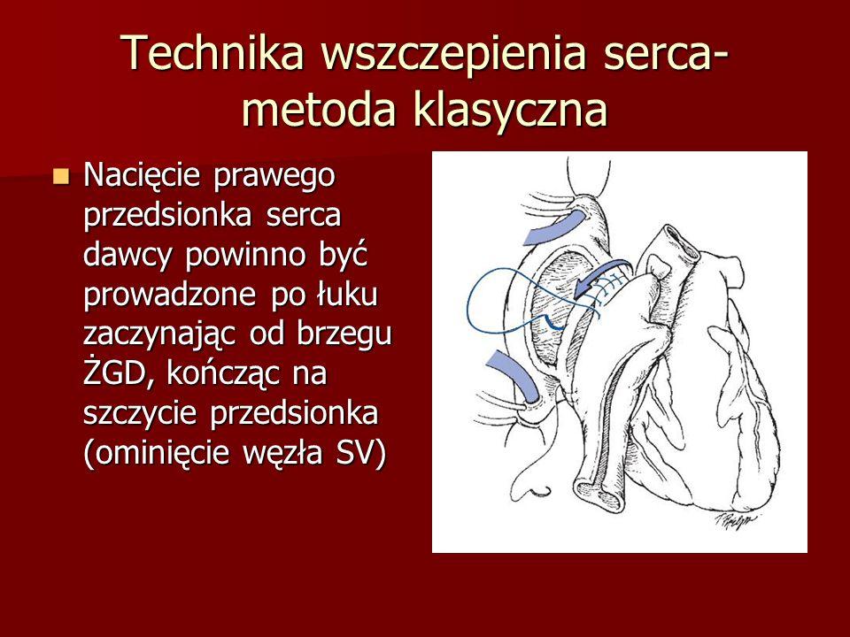 Technika wszczepienia serca- metoda klasyczna Nacięcie prawego przedsionka serca dawcy powinno być prowadzone po łuku zaczynając od brzegu ŻGD, kończą