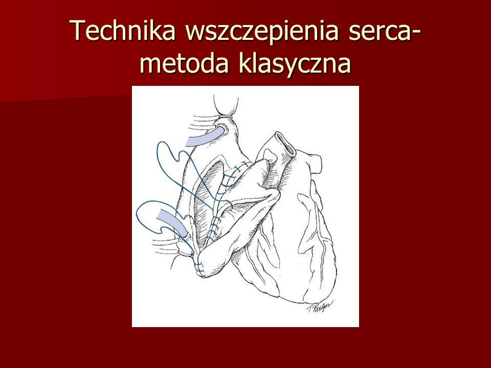 Technika wszczepienia serca- metoda klasyczna