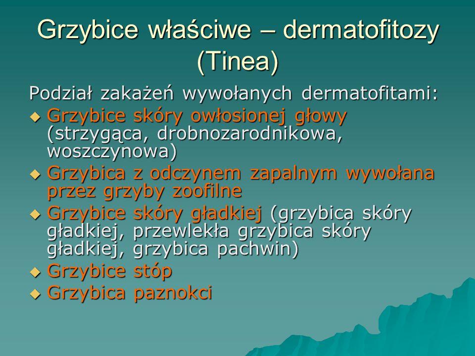 Grzybice właściwe – dermatofitozy (Tinea) Podział zakażeń wywołanych dermatofitami:  Grzybice skóry owłosionej głowy (strzygąca, drobnozarodnikowa, w