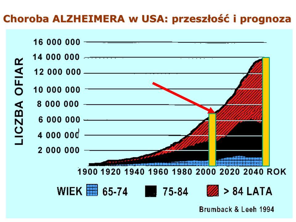 Choroba ALZHEIMERA w USA: przeszłość i prognoza