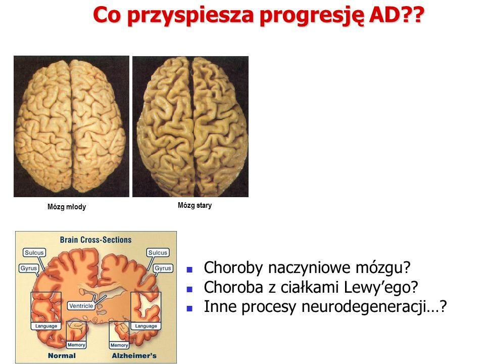 Co przyspiesza progresję AD . Choroby naczyniowe mózgu.