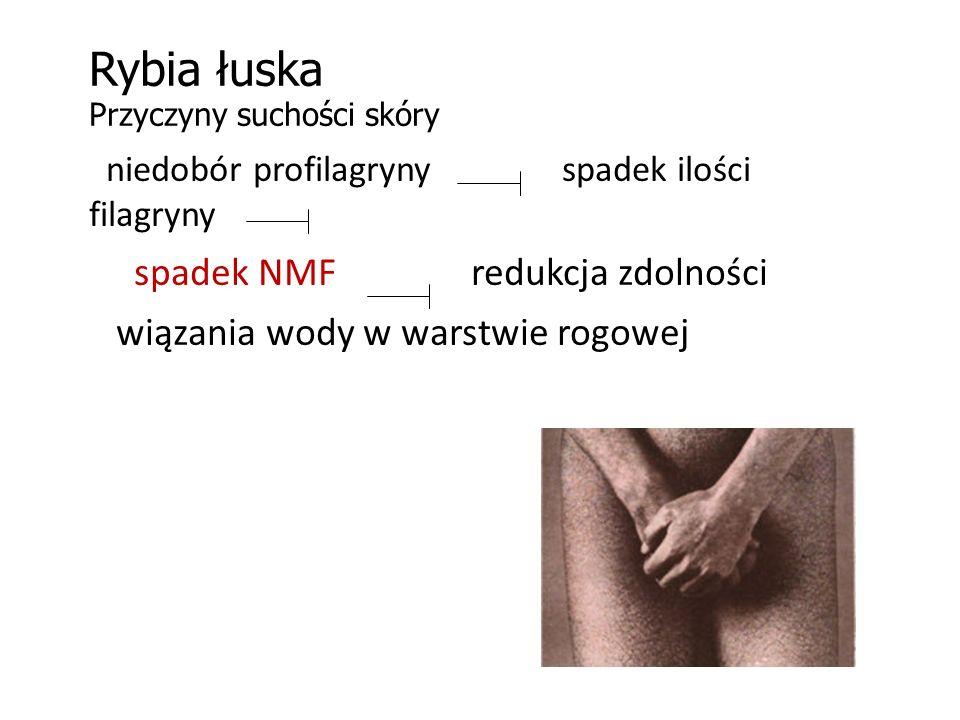 Rybia łuska Przyczyny suchości skóry niedobór profilagryny spadek ilości filagryny spadek NMF redukcja zdolności wiązania wody w warstwie rogowej