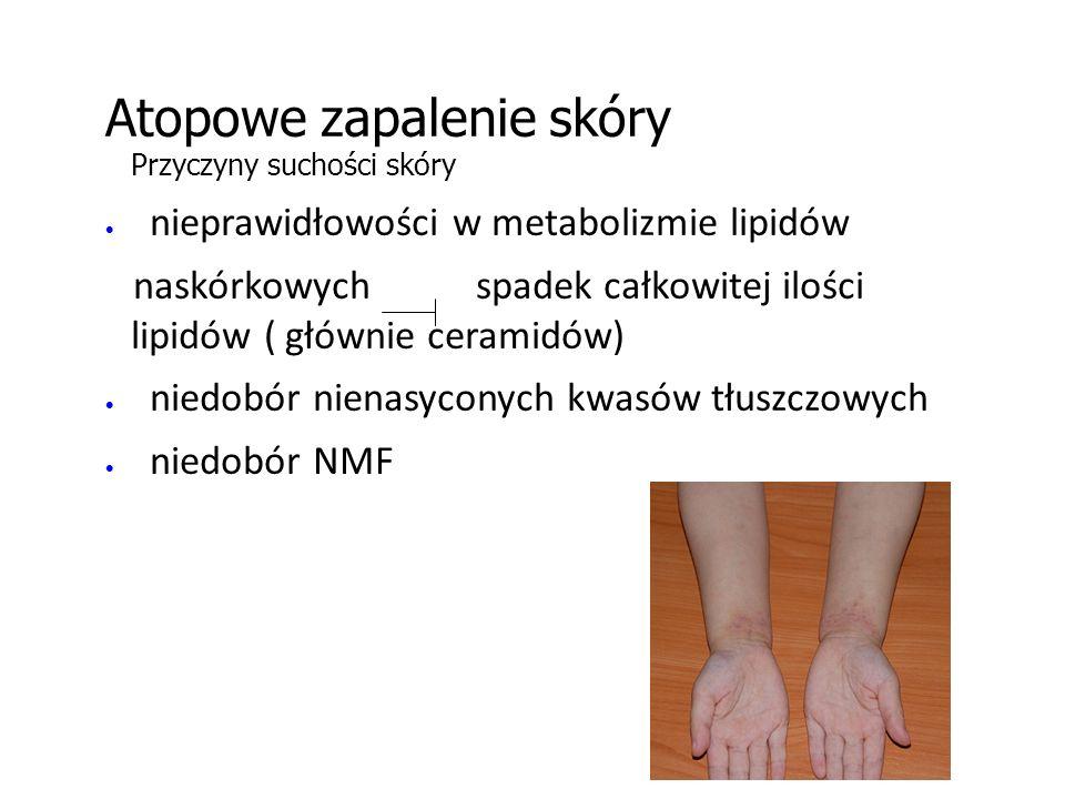 Atopowe zapalenie skóry Przyczyny suchości skóry  nieprawidłowości w metabolizmie lipidów naskórkowych spadek całkowitej ilości lipidów ( głównie ceramidów)  niedobór nienasyconych kwasów tłuszczowych  niedobór NMF
