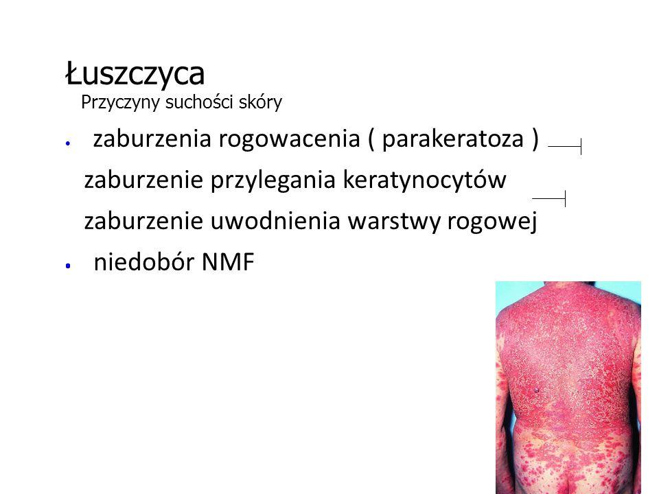 Łuszczyca Przyczyny suchości skóry  zaburzenia rogowacenia ( parakeratoza ) zaburzenie przylegania keratynocytów zaburzenie uwodnienia warstwy rogowej  niedobór NMF