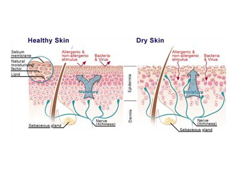 Cechy charakterystyczne tłustej skóry Błyszczący wygląd Rozszerzone pory (ujścia gruczołów łojowych) Gruba Mało wrażliwa Mniej podatna na podrażnienia