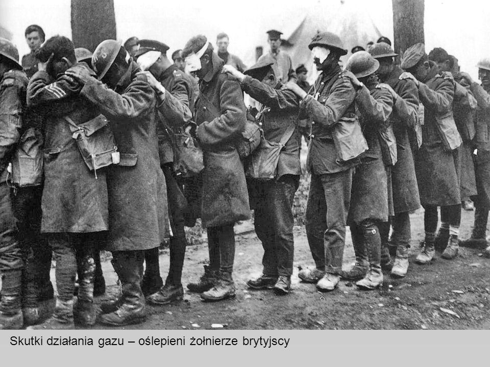 Skutki działania gazu – oślepieni żołnierze brytyjscy