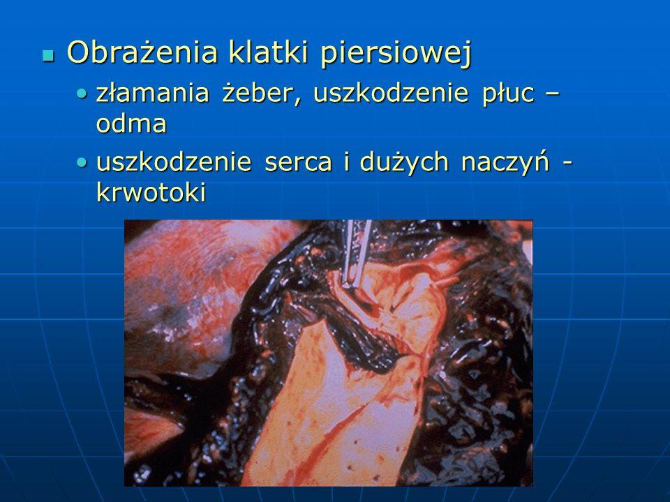 Obrażenia klatki piersiowej Obrażenia klatki piersiowej złamania żeber, uszkodzenie płuc – odmazłamania żeber, uszkodzenie płuc – odma uszkodzenie serca i dużych naczyń - krwotokiuszkodzenie serca i dużych naczyń - krwotoki