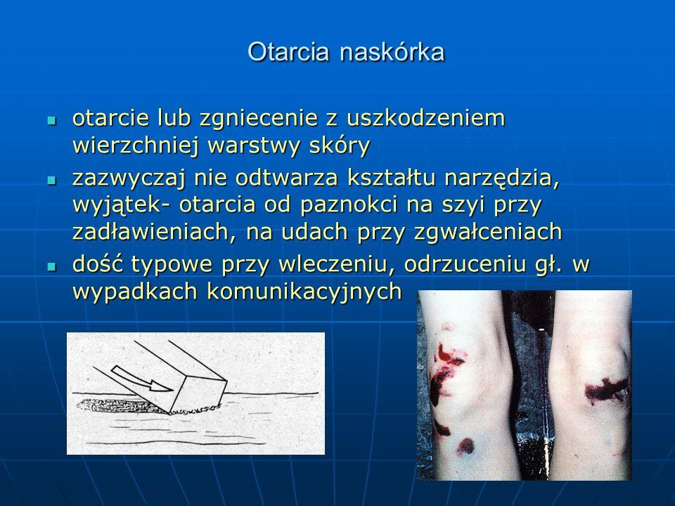Otarcia naskórka otarcie lub zgniecenie z uszkodzeniem wierzchniej warstwy skóry otarcie lub zgniecenie z uszkodzeniem wierzchniej warstwy skóry zazwyczaj nie odtwarza kształtu narzędzia, wyjątek- otarcia od paznokci na szyi przy zadławieniach, na udach przy zgwałceniach zazwyczaj nie odtwarza kształtu narzędzia, wyjątek- otarcia od paznokci na szyi przy zadławieniach, na udach przy zgwałceniach dość typowe przy wleczeniu, odrzuceniu gł.