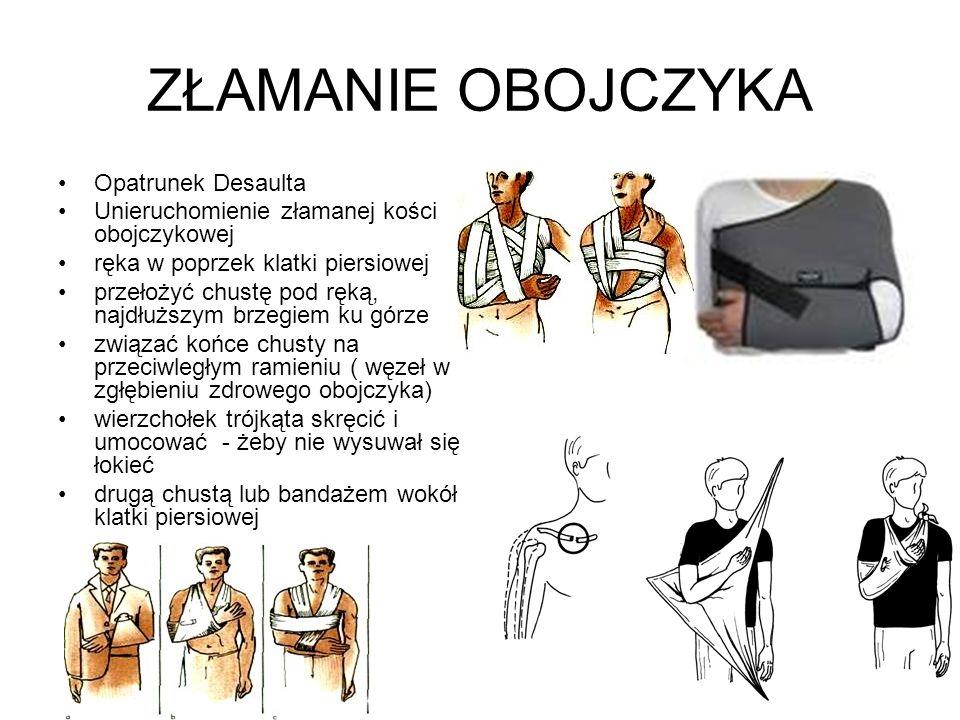 ZŁAMANIE OBOJCZYKA Opatrunek Desaulta Unieruchomienie złamanej kości obojczykowej ręka w poprzek klatki piersiowej przełożyć chustę pod ręką, najdłużs