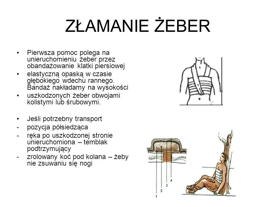 ZŁAMANIE ŻEBER Pierwsza pomoc polega na unieruchomieniu żeber przez obandażowanie klatki piersiowej elastyczną opaską w czasie głębokiego wdechu ranne