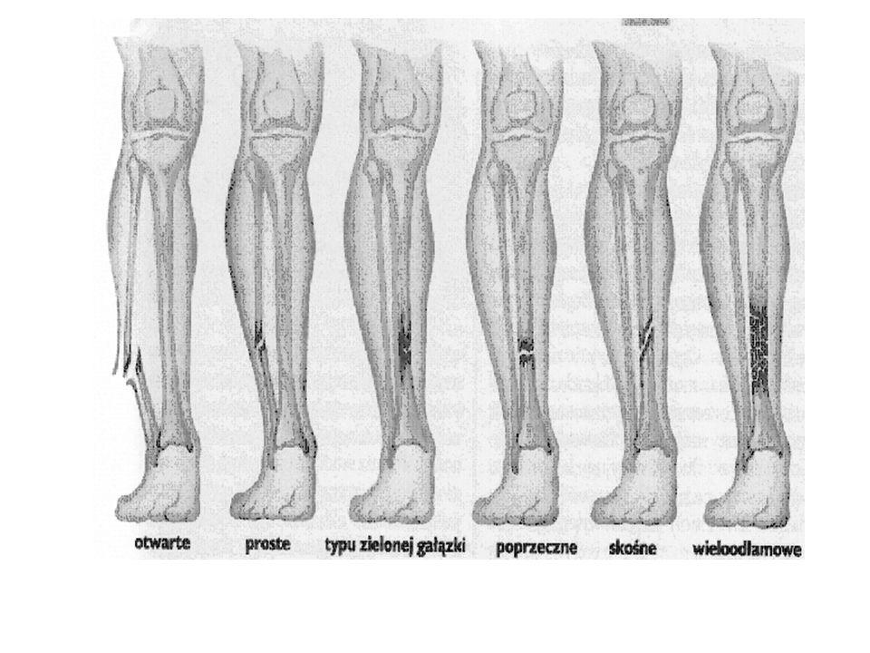 RODZAJE ZŁAMAŃ Ze względu na przyczynę mechaniczne – uraz mechaniczny patologiczne – proces chorobotwórczy