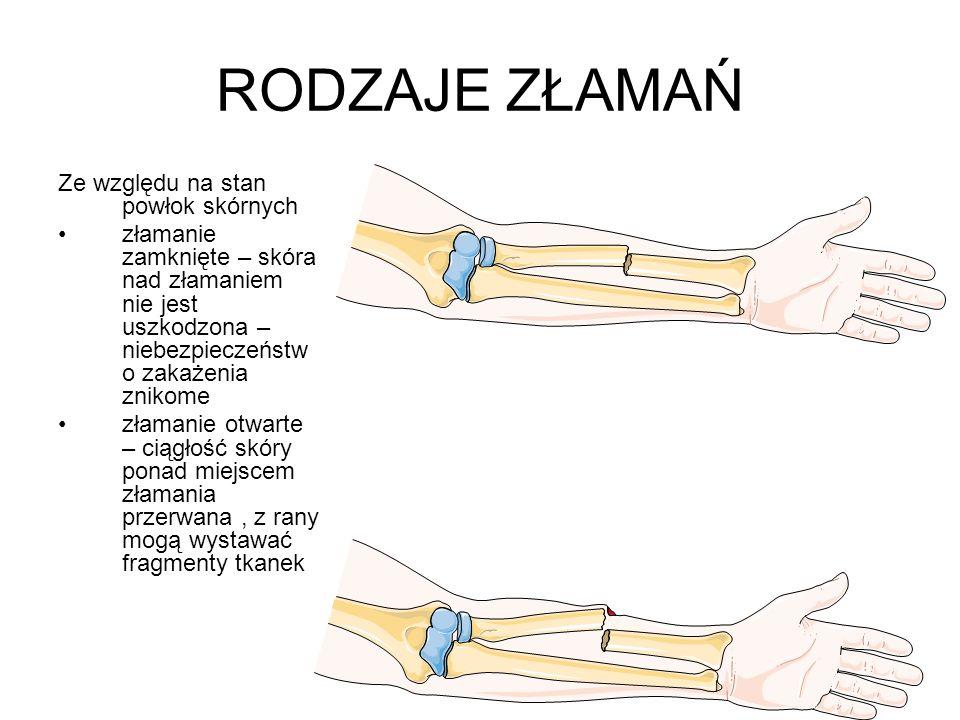 RODZAJE ZŁAMAŃ Ze względu na stan powłok skórnych złamanie zamknięte – skóra nad złamaniem nie jest uszkodzona – niebezpieczeństw o zakażenia znikome