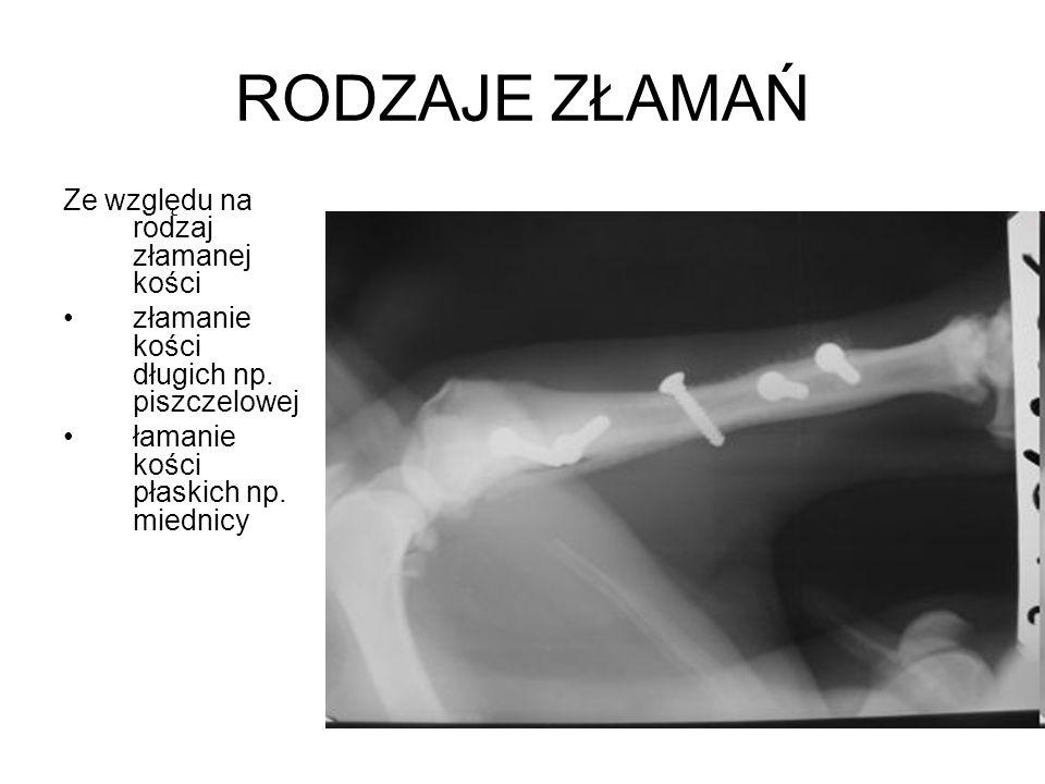 RODZAJE ZŁAMAŃ Ze względu na rodzaj złamanej kości złamanie kości długich np. piszczelowej łamanie kości płaskich np. miednicy