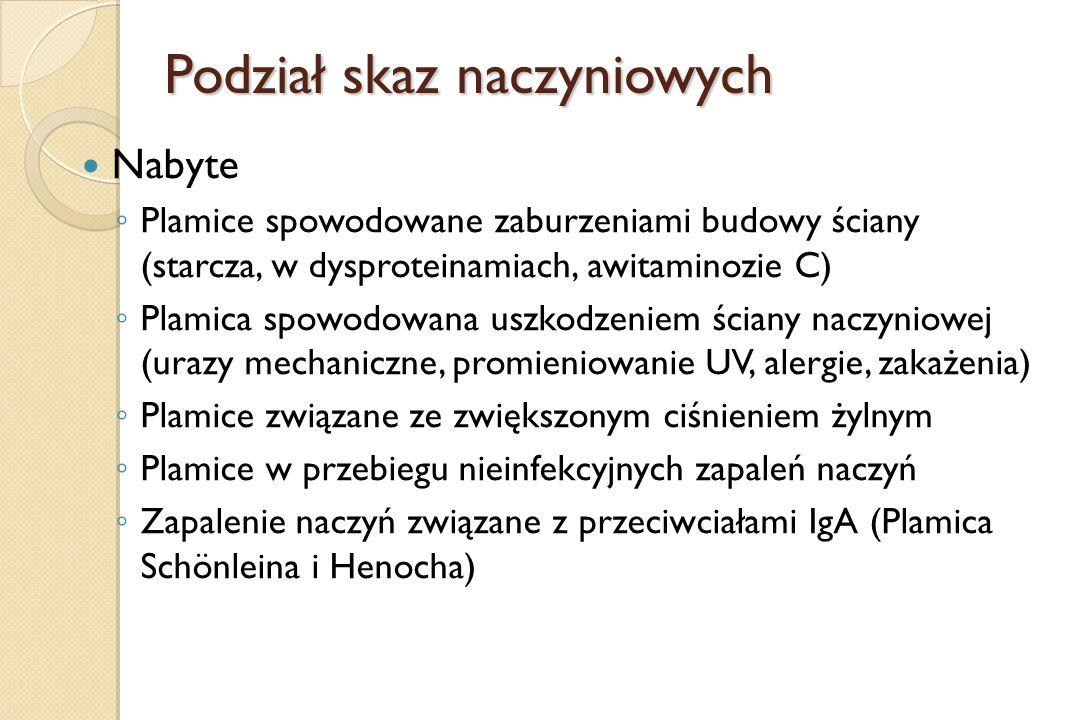 Podział skaz naczyniowych Nabyte ◦ Plamice spowodowane zaburzeniami budowy ściany (starcza, w dysproteinamiach, awitaminozie C) ◦ Plamica spowodowana