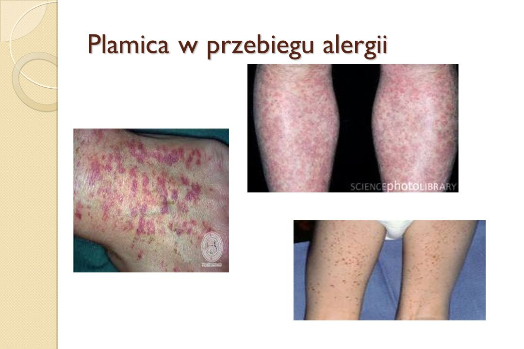 Plamica w przebiegu alergii