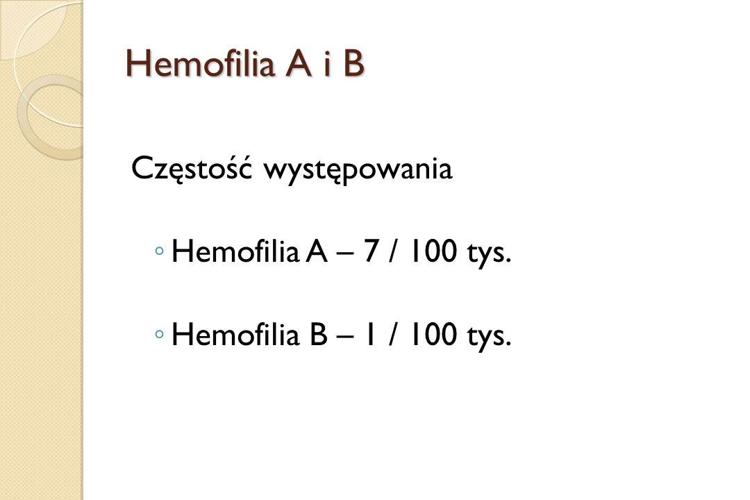 Hemofilia A i B Częstość występowania ◦ Hemofilia A – 7 / 100 tys. ◦ Hemofilia B – 1 / 100 tys.