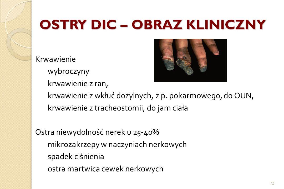 72 OSTRY DIC – OBRAZ KLINICZNY Krwawienie wybroczyny krwawienie z ran, krwawienie z wkłuć dożylnych, z p. pokarmowego, do OUN, krwawienie z tracheosto