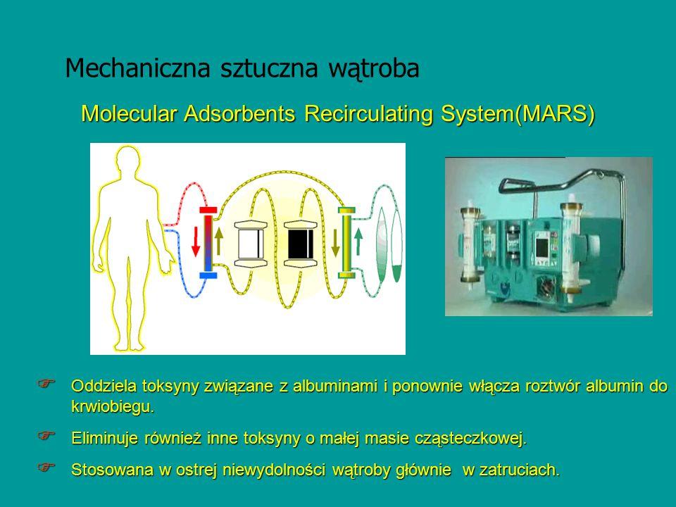 Molecular Adsorbents Recirculating System(MARS)  Oddziela toksyny związane z albuminami i ponownie włącza roztwór albumin do krwiobiegu.  Eliminuje
