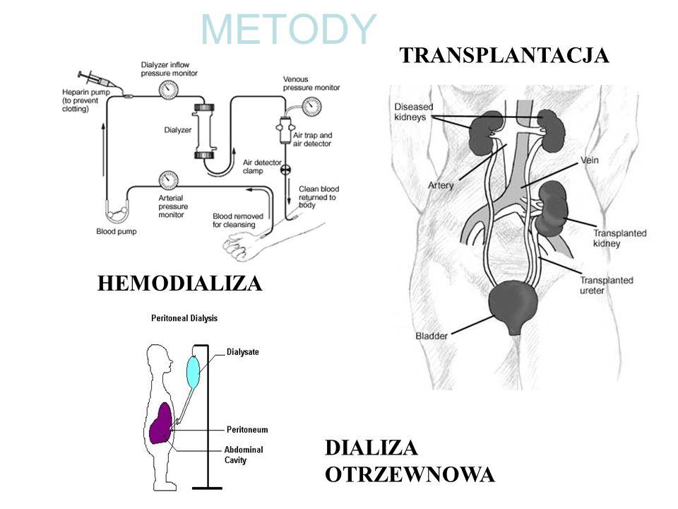 Hemodializa - wskazania Ostra niewydolność nerek – wskazania biochemiczne: stężenie potasu > 6.5 mmol/l stężenie mocznika > 150 mg/dl kwasica metaboliczna pH < 7.2