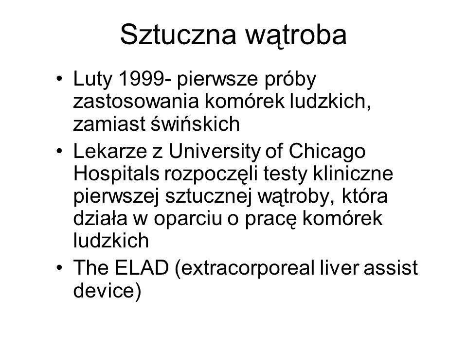 Luty 1999- pierwsze próby zastosowania komórek ludzkich, zamiast świńskich Lekarze z University of Chicago Hospitals rozpoczęli testy kliniczne pierws
