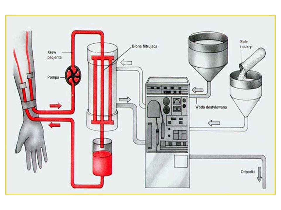 System MARS Udoskonalone urządzenie wypompowuje krew z ciała pacjenta do systemu zawierającego kapilary utworzone z błony pokrytej warstwą albumin Z jednej strony błony płynie krew, z drugiej roztwór dializacyjny zawierający albuminy Toksyny niesione przez albuminy pacjenta przyklejają się do warstwy albumin i adsorbentu węglowego na błonie kapilar, ponieważ przyciągają je one mocniej niż albuminy osocza Następnie albuminy membrany przekazują toksyny albuminom roztworu dializacyjnego