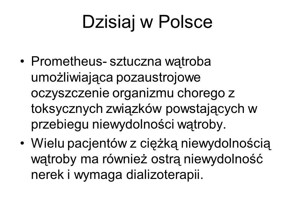 Dzisiaj w Polsce Prometheus- sztuczna wątroba umożliwiająca pozaustrojowe oczyszczenie organizmu chorego z toksycznych związków powstających w przebie