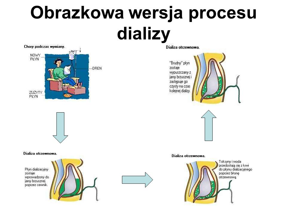 CADO CADO czyli Ciągła Ambulatoryjna Dializa Otrzewnowa Ciągła : dializa trwa 24 godziny na dobę, 7 dni w tygodniu.