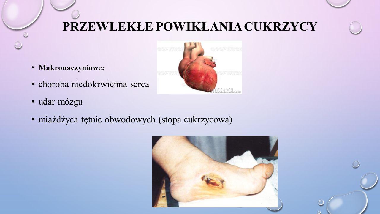PRZEWLEKŁE POWIKŁANIA CUKRZYCY Makronaczyniowe: choroba niedokrwienna serca udar mózgu miażdżyca tętnic obwodowych (stopa cukrzycowa)