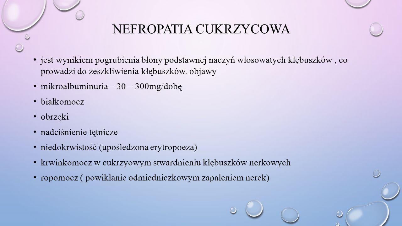 NEFROPATIA CUKRZYCOWA jest wynikiem pogrubienia błony podstawnej naczyń włosowatych kłębuszków, co prowadzi do zeszkliwienia kłębuszków. objawy mikroa