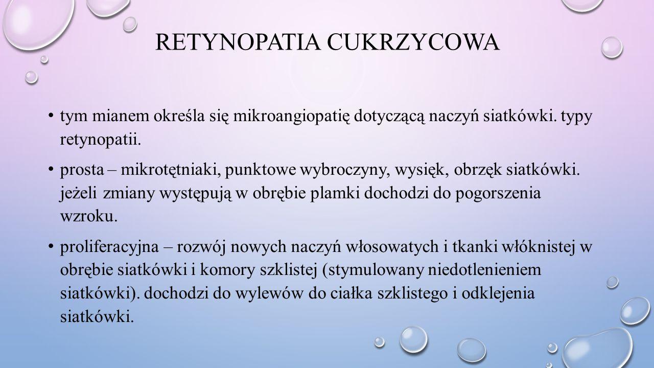 RETYNOPATIA CUKRZYCOWA tym mianem określa się mikroangiopatię dotyczącą naczyń siatkówki. typy retynopatii. prosta – mikrotętniaki, punktowe wybroczyn