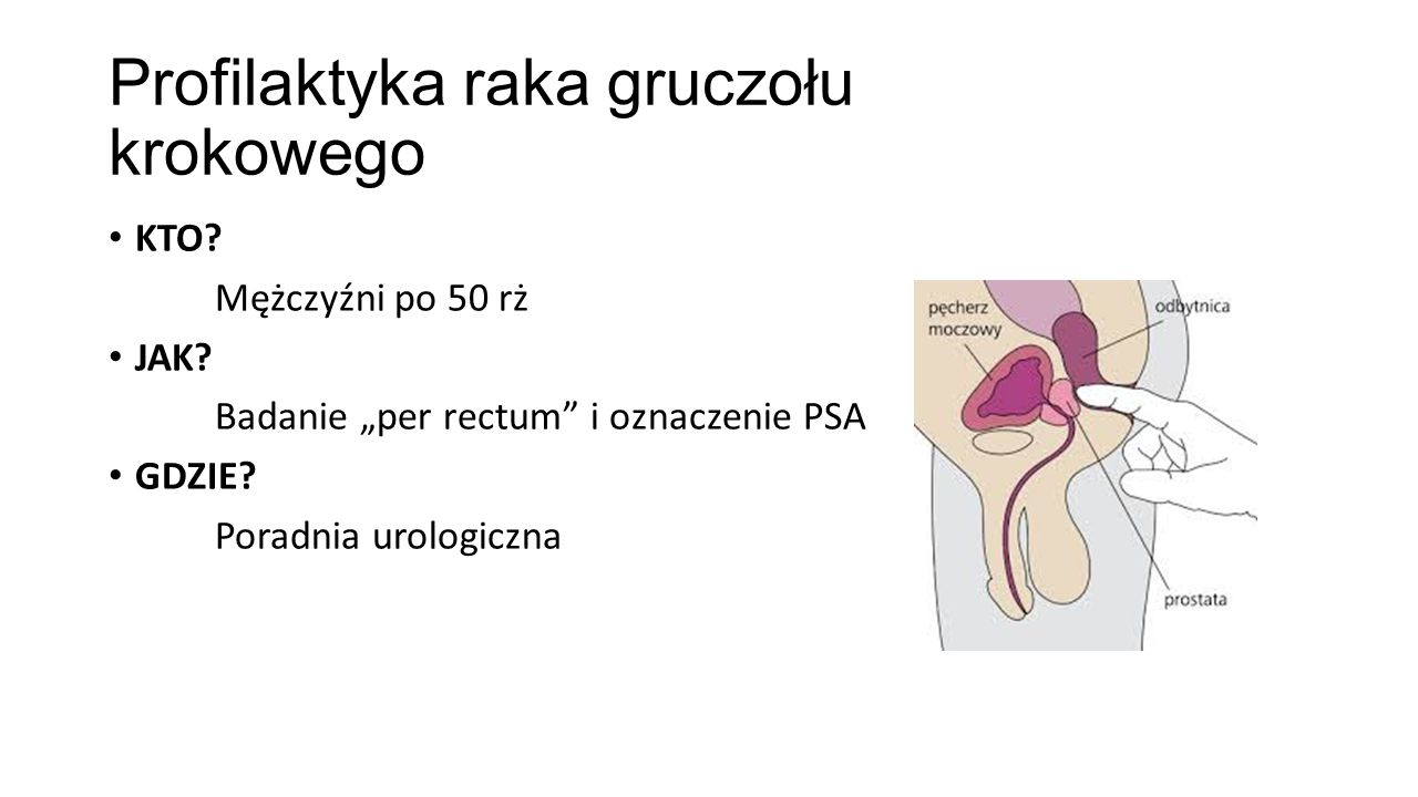 """Profilaktyka raka gruczołu krokowego KTO? Mężczyźni po 50 rż JAK? Badanie """"per rectum"""" i oznaczenie PSA GDZIE? Poradnia urologiczna"""