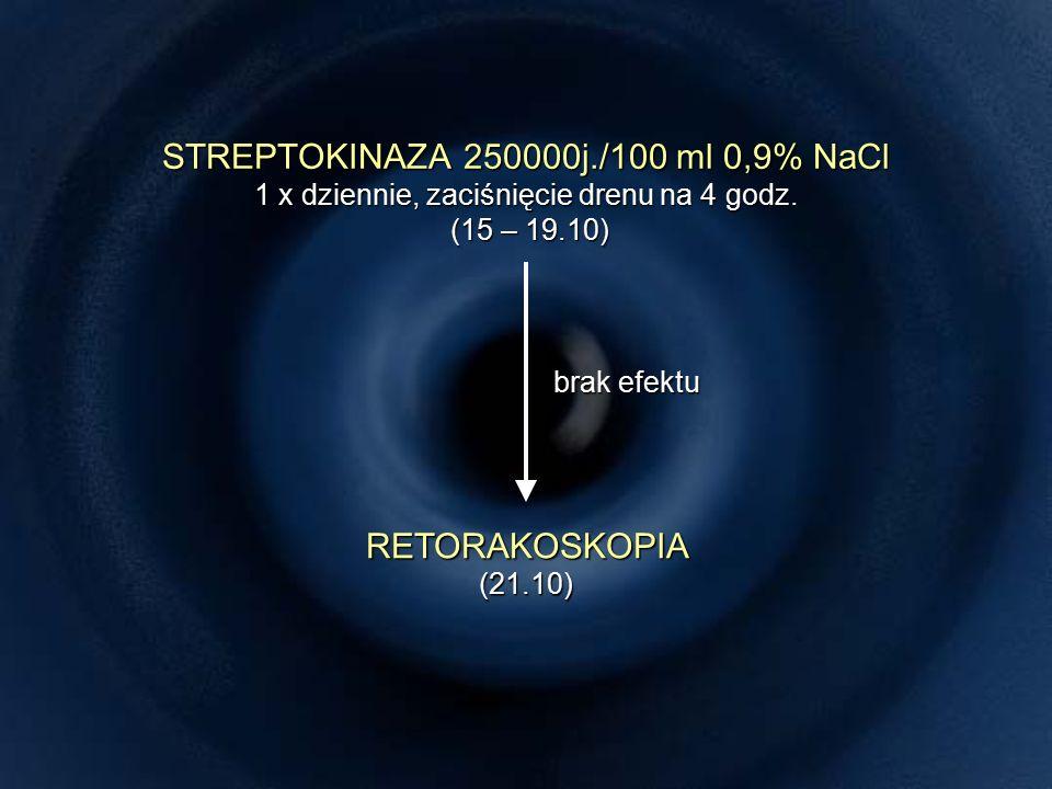 STREPTOKINAZA 250000j./100 ml 0,9% NaCl 1 x dziennie, zaciśnięcie drenu na 4 godz.
