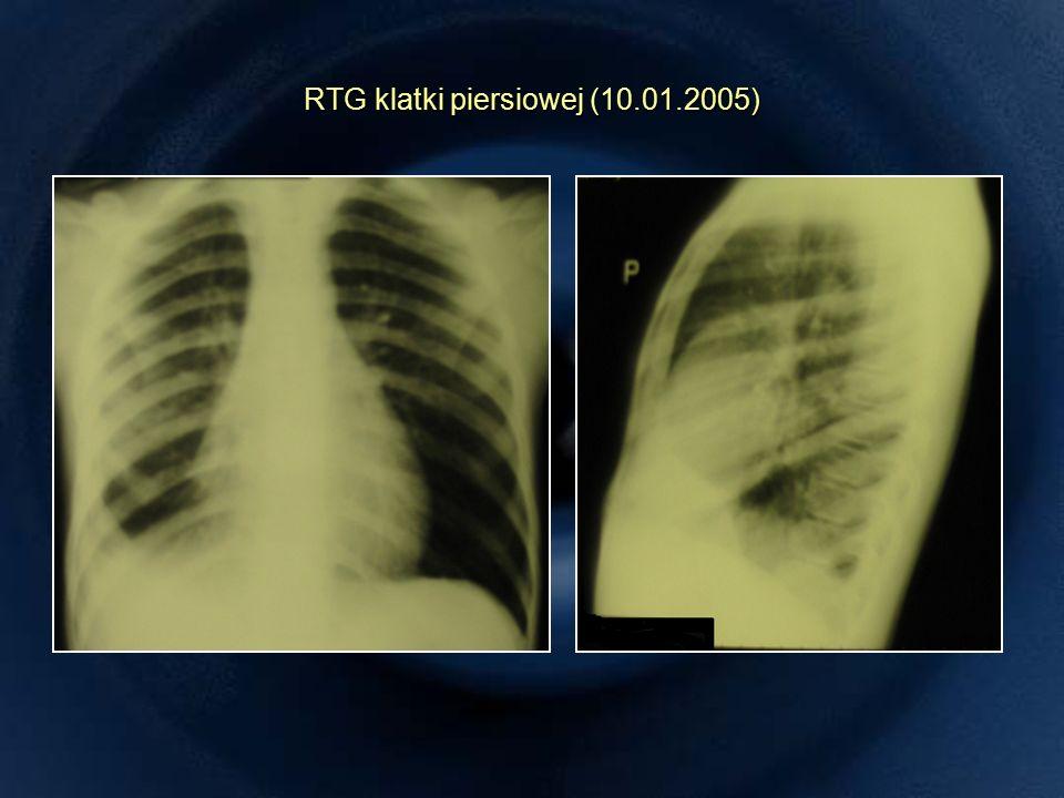 RTG klatki piersiowej (10.01.2005)