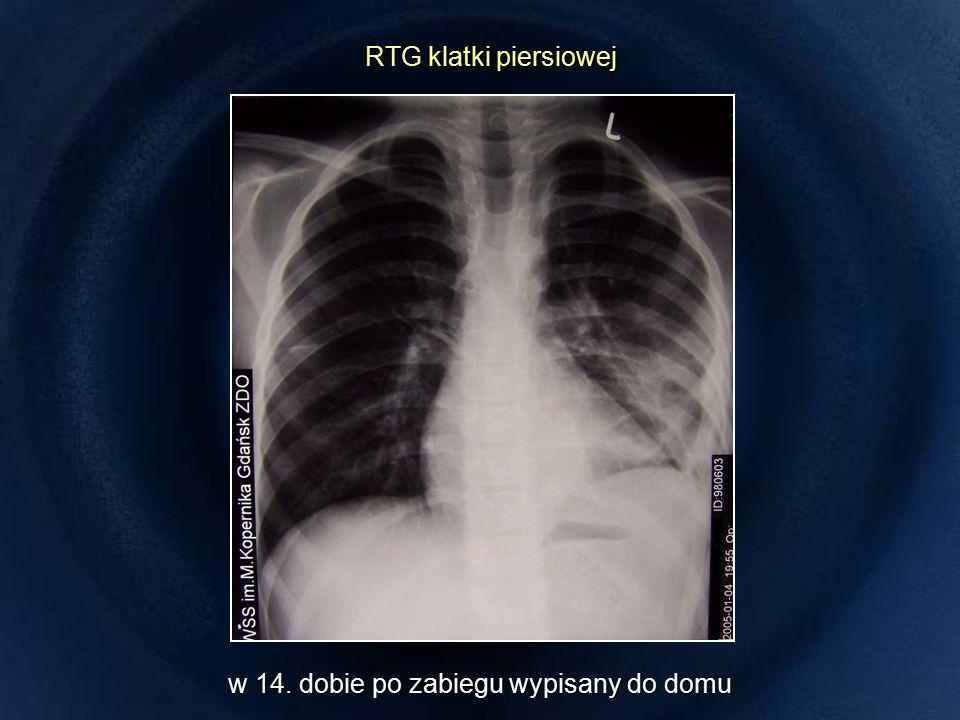 RTG klatki piersiowej RTG klatki piersiowej w 14. dobie po zabiegu wypisany do domu
