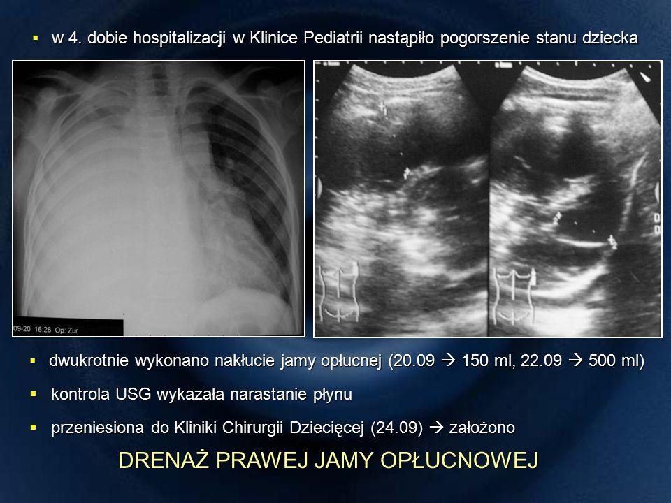TK klatki piersiowej (02.10) TORAKOSKOPIA (04.10) TORAKOSKOPIA (04.10)