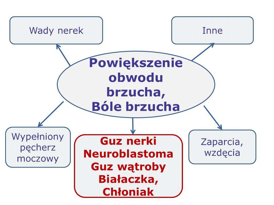 Guz nerki Neuroblastoma Guz wątroby Białaczka, Chłoniak Powiększenie obwodu brzucha, Bóle brzucha Wypełniony pęcherz moczowy Zaparcia, wzdęcia Wady ne