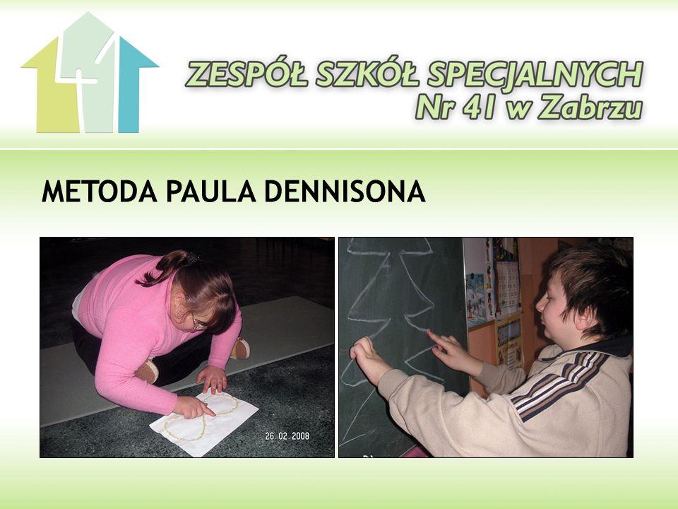METODA PAULA DENNISONA