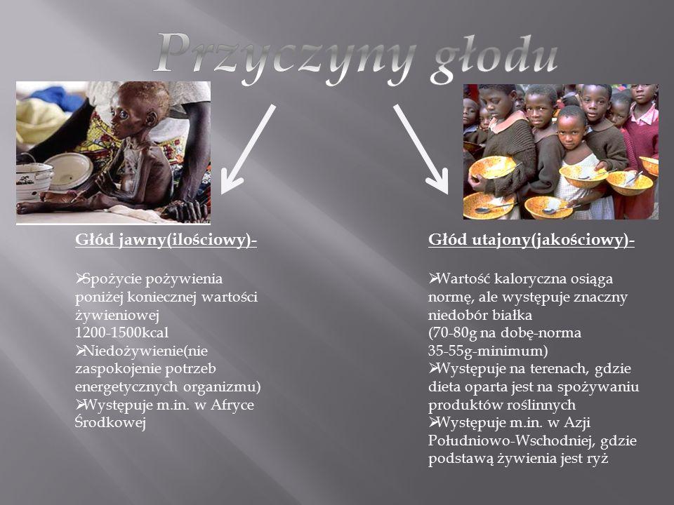 Głód jawny(ilościowy)-  Spożycie pożywienia poniżej koniecznej wartości żywieniowej 1200-1500kcal  Niedożywienie(nie zaspokojenie potrzeb energetycz