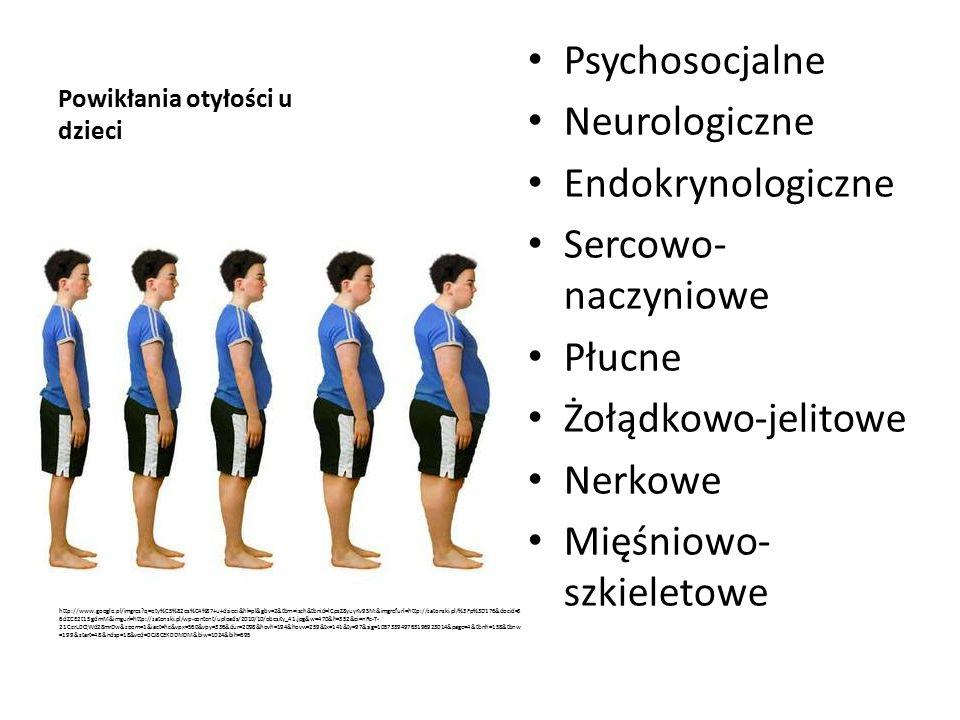 Powikłania otyłości u dzieci Psychosocjalne Neurologiczne Endokrynologiczne Sercowo- naczyniowe Płucne Żołądkowo-jelitowe Nerkowe Mięśniowo- szkieletowe http://www.google.pl/imgres q=oty%C5%82os%C4%87+u+dzieci&hl=pl&gbv=2&tbm=isch&tbnid=lCpsZ8yuyKv9SM:&imgrefurl=http://zatonski.pl/%3Fp%3D176&docid=3 6dZCE2t15gdmM&imgurl=http://zatonski.pl/wp-content/uploads/2010/10/obesity_41.jpg&w=470&h=352&ei=nRc-T- 21CcrL0QWd28mrDw&zoom=1&iact=hc&vpx=560&vpy=336&dur=2098&hovh=194&hovw=259&tx=141&ty=97&sig=105733949763196923014&page=4&tbnh=158&tbnw =199&start=48&ndsp=18&ved=0CJ8CEK0DMDM&biw=1024&bih=695