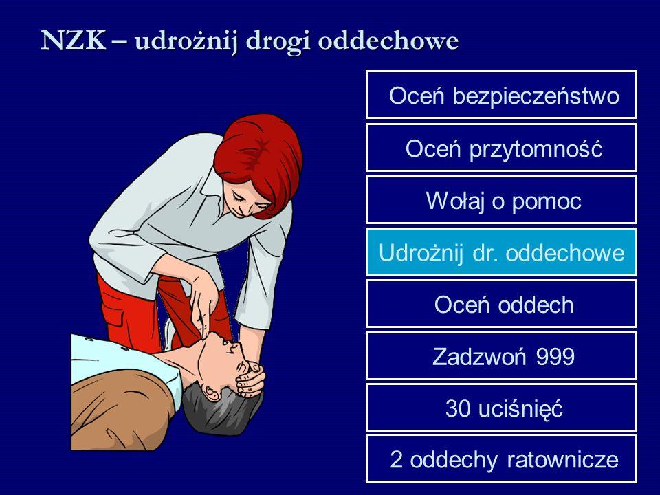 Udrożnij dr. oddechowe Wołaj o pomoc Oceń przytomność Oceń bezpieczeństwo 30 uciśnięć Zadzwoń 999 Oceń oddech 2 oddechy ratownicze NZK – udrożnij drog