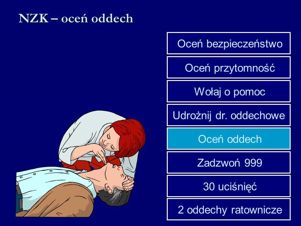 Udrożnij dr. oddechowe Wołaj o pomoc Oceń przytomność Oceń bezpieczeństwo 30 uciśnięć Zadzwoń 999 Oceń oddech 2 oddechy ratownicze NZK – oceń oddech